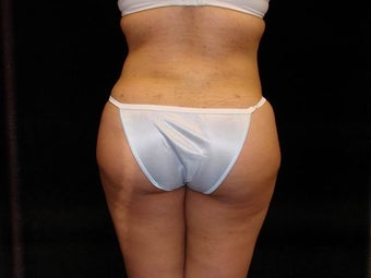 Buttocks Augmentation