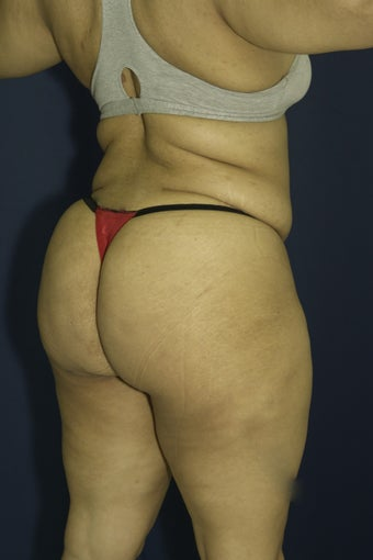 Brazilian Butt Lift surgery (liposuction to multiple areas and fat grafting to buttock)