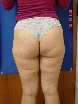 Brazilian Butt Lift/Liposuction