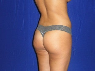 Brazilian Butt Augmentation
