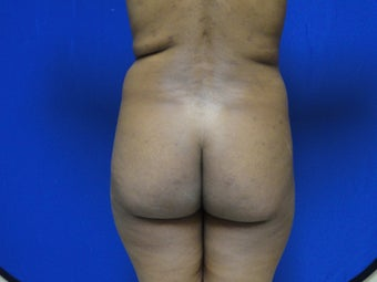 Brazilian Butt Lift/Fat Grafting Buttock Augmentation