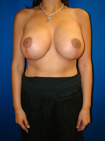 Breast lift with breast implant exchange