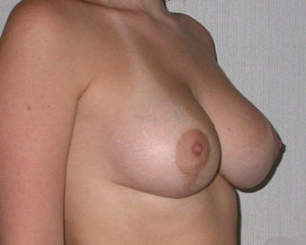 Breast Asymmetry Correction