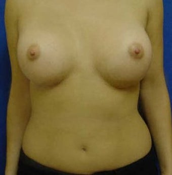 Transaxillary Breast Augmentation