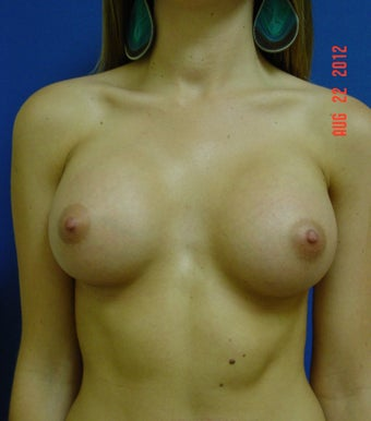 Woman in her mid twenties treated for uneven size and shape