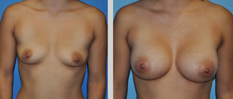 Flash Recovery Breast Augmentation TM