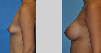 Flash Recovery Breast Augmentation (TM)