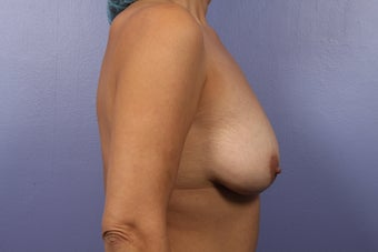 Breast Augmentation- Mommy Makeover
