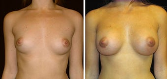 28 year old female, breast augmentation