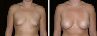 26 year old female, breast augmentation