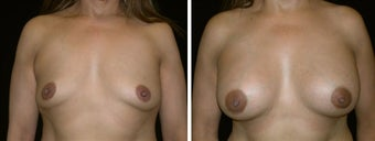 47 year old female, breast augmentation, San Francisco, California