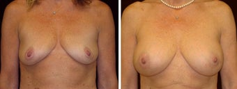 45 year old female, breast augmentation, San Francisco, California
