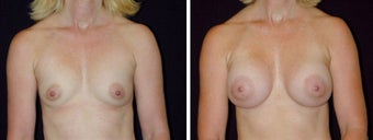 21 year old female, breast augmentation, San Francisco, California