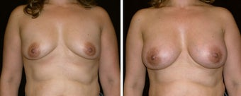 39 year old female, breast augmentation