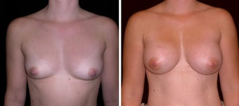 29 year old female, breast augmentation, San Francisco, California