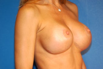 Breast Implant Exchange and Lift