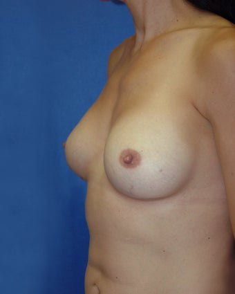 Breast Implant Removal and Reaugmentation
