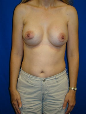 Revisionary Breast Surgery