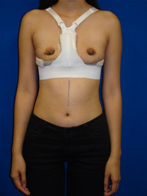 Breast Reconstruction Symmastia Repair