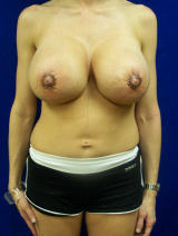 Revisionary Breast Surgery with Extra Large Implants