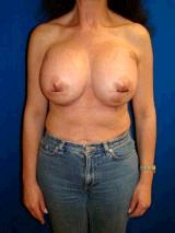 Extra Large Breast Augmentation Surgery with Saline Implants (Overfill)