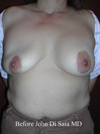 Saline Breast Implant Redo with Scar Removal and Breast Lift