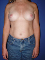 Revisionary Breast Surgery with Silicone-Gel Breast Implants