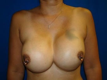 Breast Revision Surgery, Symmastia Repair