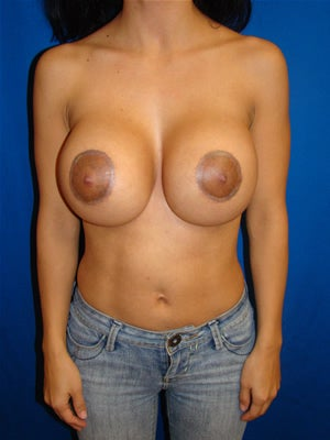 Breast Revison Surgery