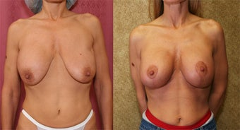 breast deflation