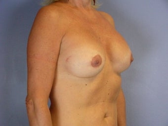 Circumareolar Breast Lift and Implants