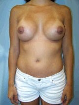 Revision Breast Surgery, Internal Sutures (Internal Bra)