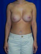 Revision Breast Surgery, Symmastia Repair, Internal Sutures (Internal Bra)