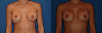 Breast Revision/Capsulorrhaphy