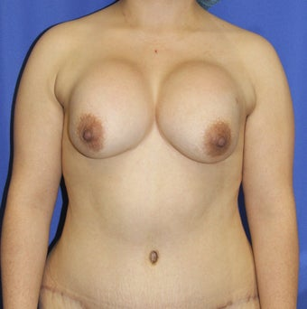 Breast Implant Revision by Jeffrey D. Hoefflin, M.D., FACS