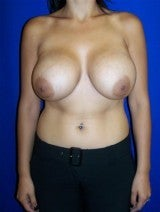 Revision Breast Surgery, Breast Lift with Implants