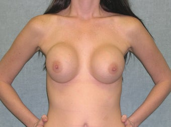 Breast Imlant Revision