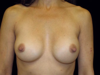 Breast Implant Replacement