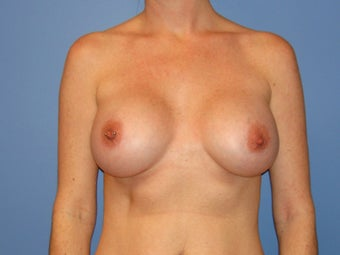 Breast augmentation with saline implants