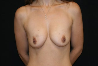 Breast Augmentation with Nipple-Areolar Complex Lift