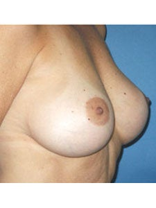 Corrective Breast Implant Surgery