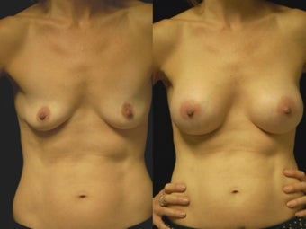 Breast augmentation, gel implants