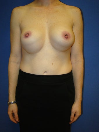 Silicone breast implant revision surgery