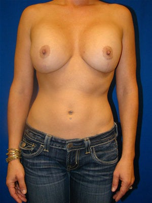 Revisionary Breast Augmentation