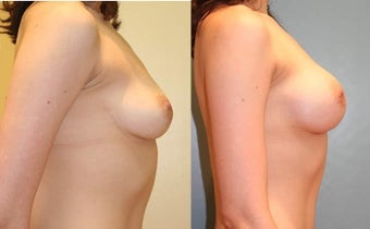 Breast Augmentation (A cup to C cup)