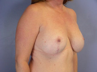 BREAST LIFT/ BREAST AUGMENTATION