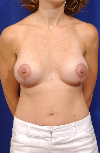 Breast lift with saline implants