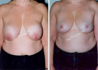 Implant removal and Breast lift