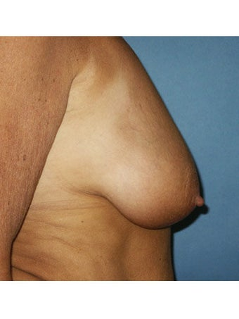 Bilateral mastopexy augmentation with placement of smooth saline breast implants. Right implant 300cc filled with 360cc, left i