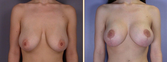 Mastopexy, Breast Lift